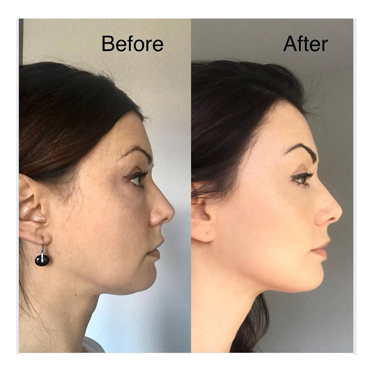Face Yoga testimonial photo